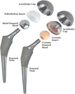 Hip Replacement Ireland | Total Hip Arthroplasty Bearing ...